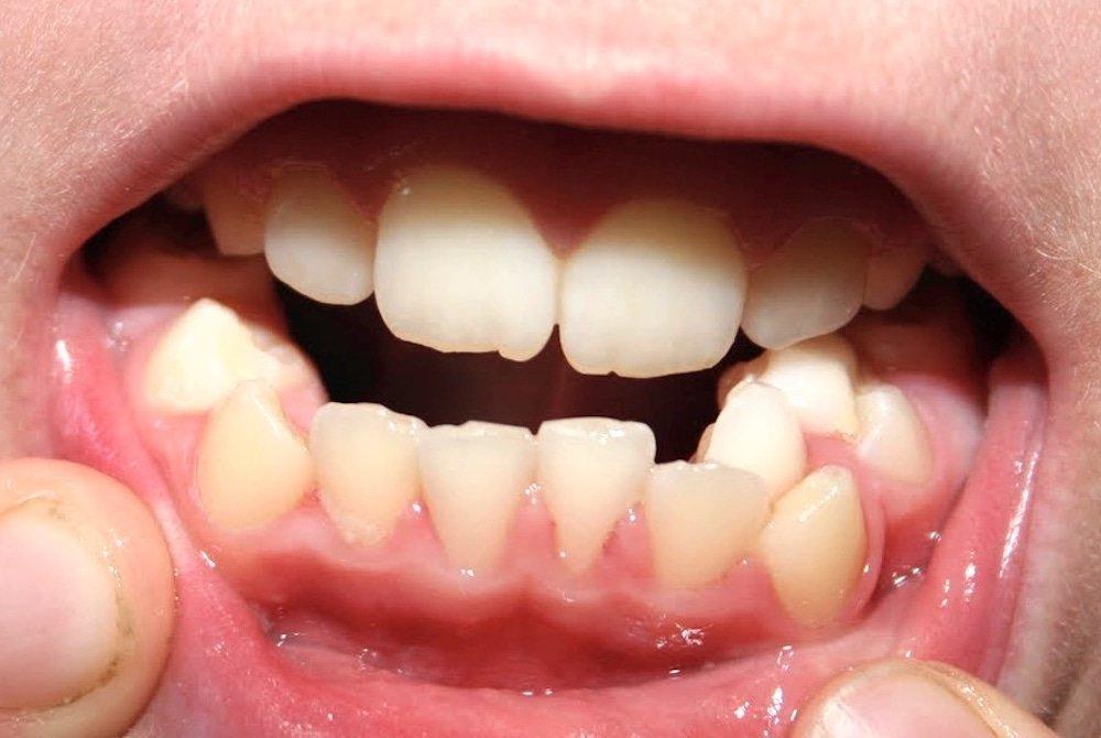 odontoiatria-under-15