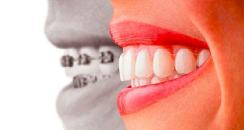 dentista milano 3